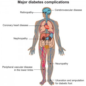major-diabets-complications